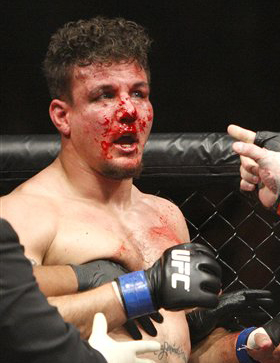 Bloodied Mir at UFC 100