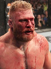 Bloodied Brock Lesnar